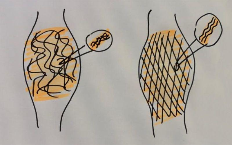 Faszientraining aus chiropraktischer Sicht